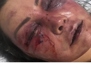 'Logo estou numa boa', diz mulher que foi agredida por quase 4h em seu apartamento.